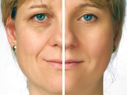 Juvederm Procedures Brampton