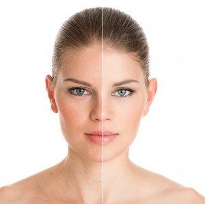 Therapeutic Botox Treatments